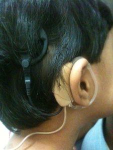 cochlear implant program, maurya foundation